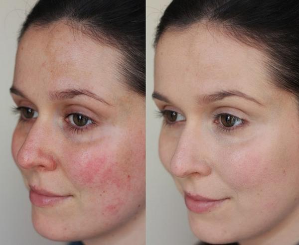 Фото до и после курса процедур AFT омоложения №3