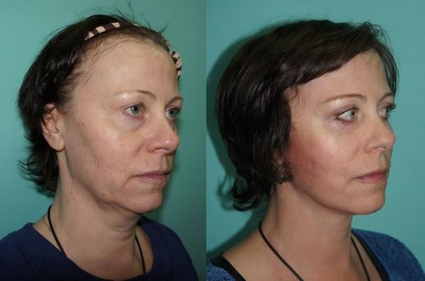 Фото до и после проведения процедуры чек-лифтинга №2