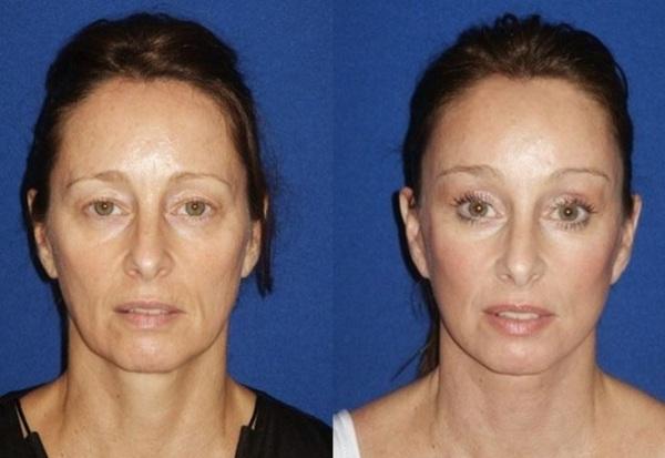Фото до и после эндоскопической подтяжки лица №2