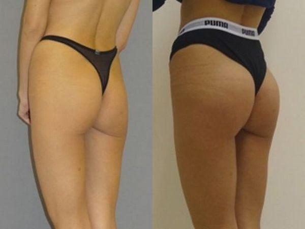 Фото до и после глютеопластики №2