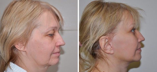 Фото до и после операции фейслифтинга №1