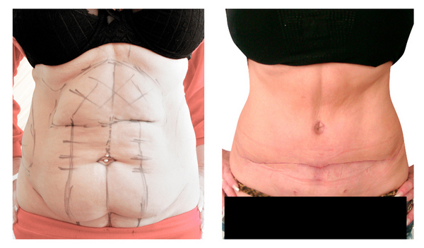 Фото до и после абдоминопластики №2