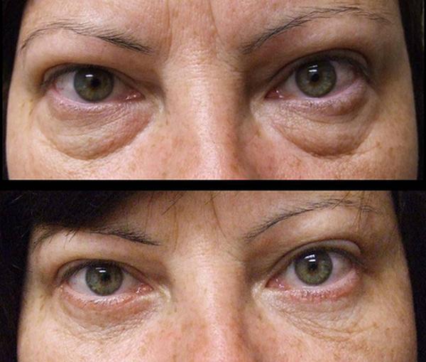 Фото до и после инъекционной блефаропластики №2