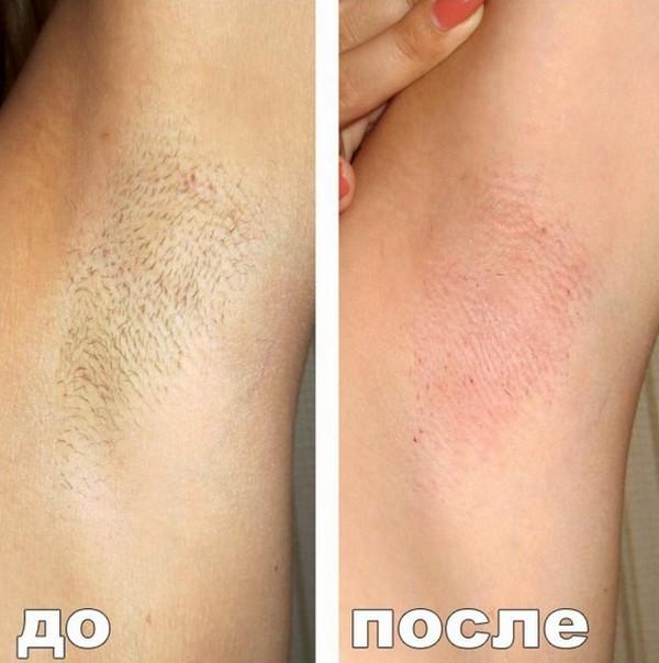 Фото до и после курса процедур энзимной эпиляции №3