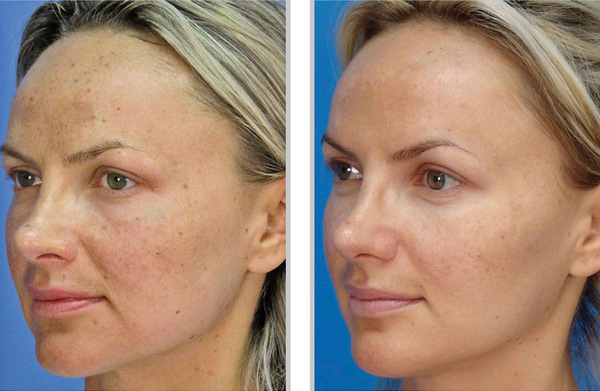 Фото до и после курса процедур фитинового пилинга №3