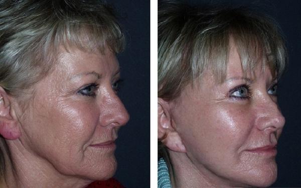 Фото до и после курса процедур AFT омоложения №2