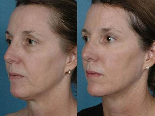 Фото до и после редермализации №3