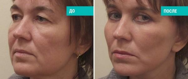 Фото до и после проведения процедуры чек-лифтинга №3