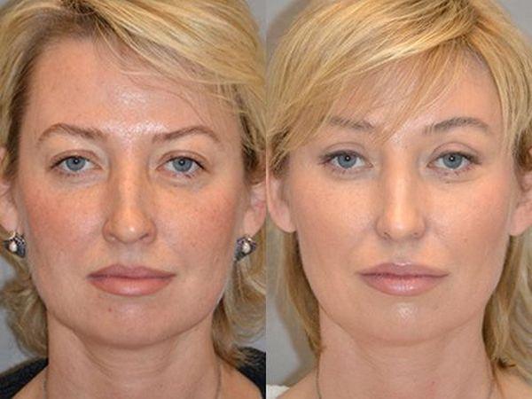 Фото до и после эндоскопической подтяжки лица №3
