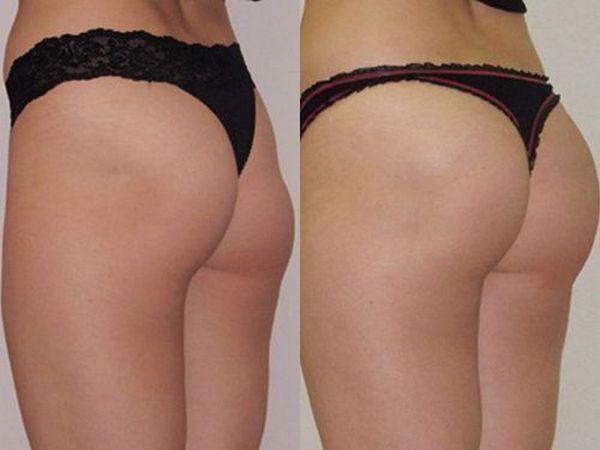 Фото до и после глютеопластики №3