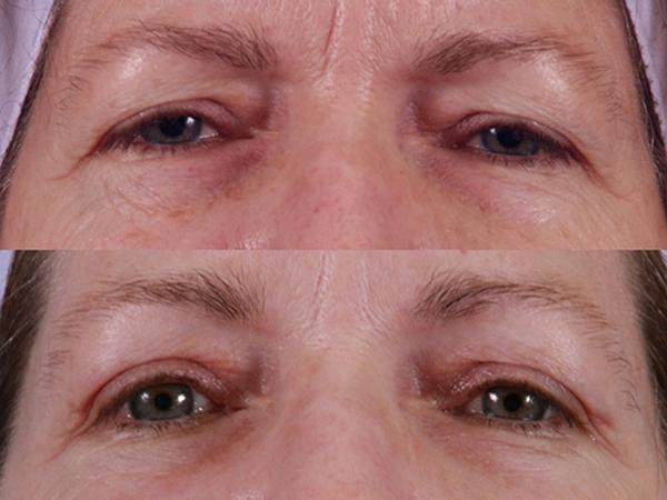Фото до и после инъекционной блефаропластики №3