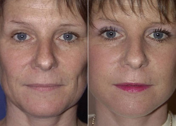 Фото до и после операции фейслифтинга №2