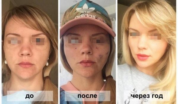 Фото до и после операции фейслифтинга №3