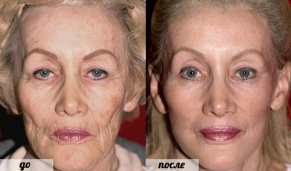 Фото до и после эндоскопической подтяжки лица №1