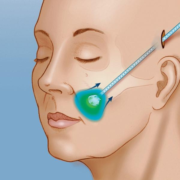 Вживление эндотинов не требует наложения хирургических швов