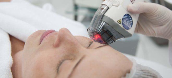 Процедура фракционного фототермолиза