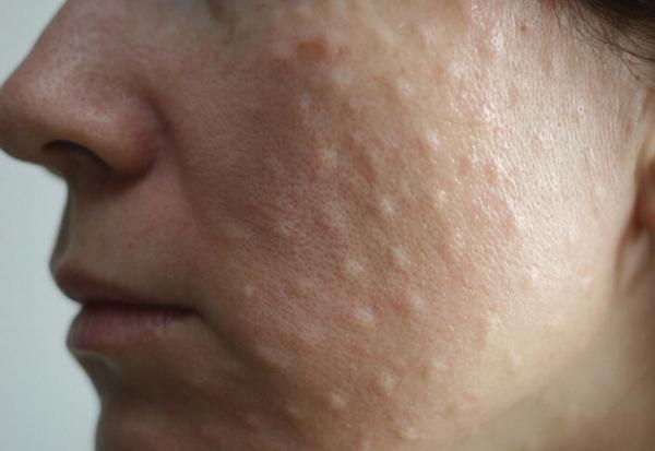 Если средство вводилось папульным методом, «бугорки» на коже будут сохраняться несколько суток