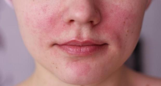 Последствием аппаратных процедур могут быть ожоги и покраснение кожи
