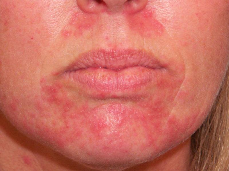 Ботокс противопоказан при наличии заболеваний кожи