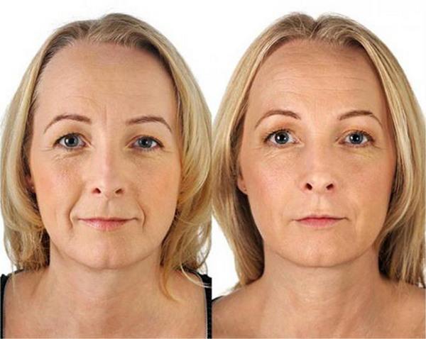 Фото до и после использования филлеров Рестилайн (Restylane)