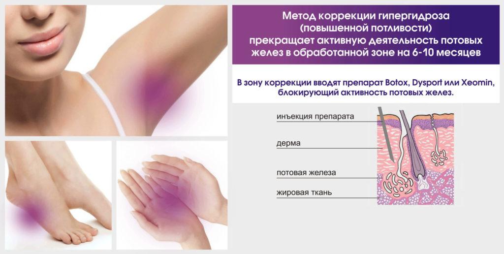 При введение ботулотоксина происходит блокировка активности потовых желез