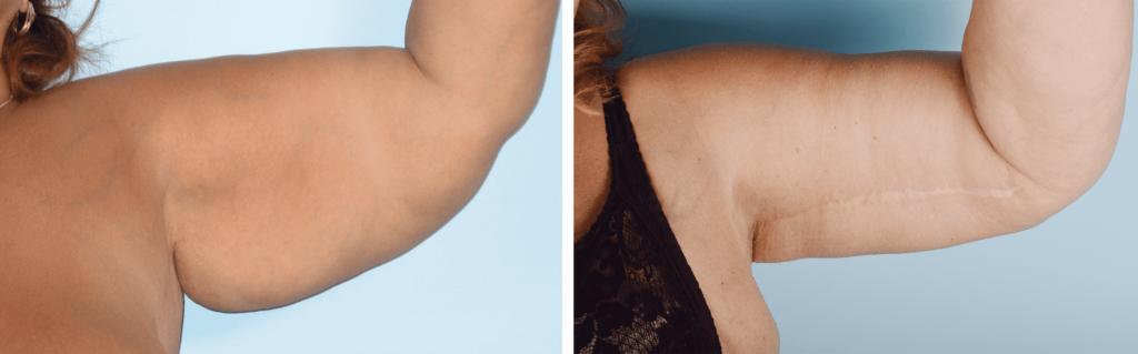 Фото до и после брахиопластики №1