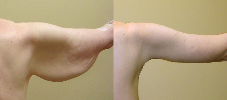 Фото до и после брахиопластики №6