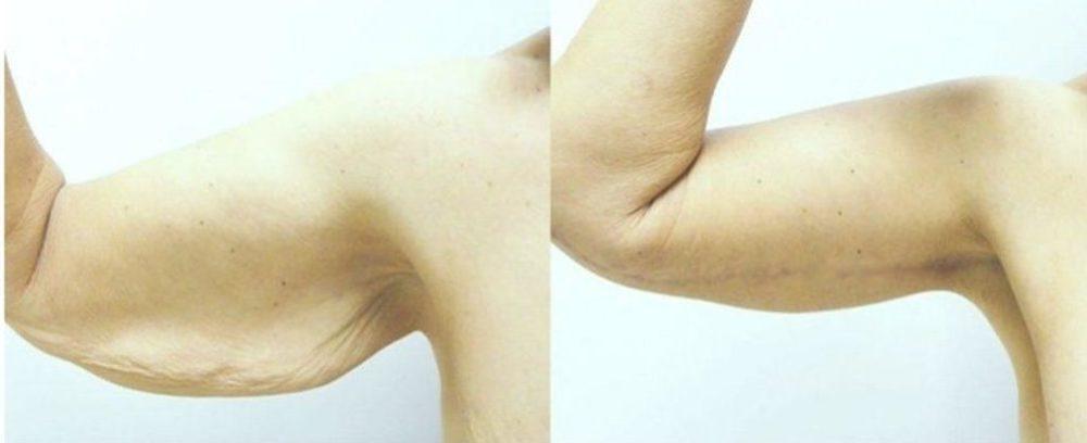 Фото до и после брахиопластики №5