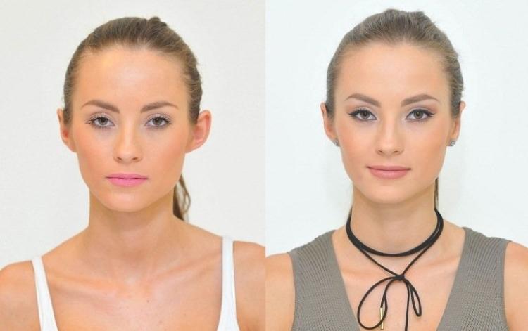 Фото до и после лазерной отопластики №8
