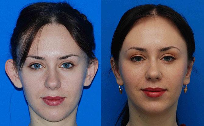 Фото до и после лазерной отопластики №7