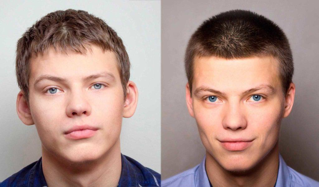 Фото до и после лазерной отопластики №2