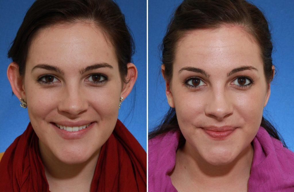 Фото до и после лазерной отопластики №3