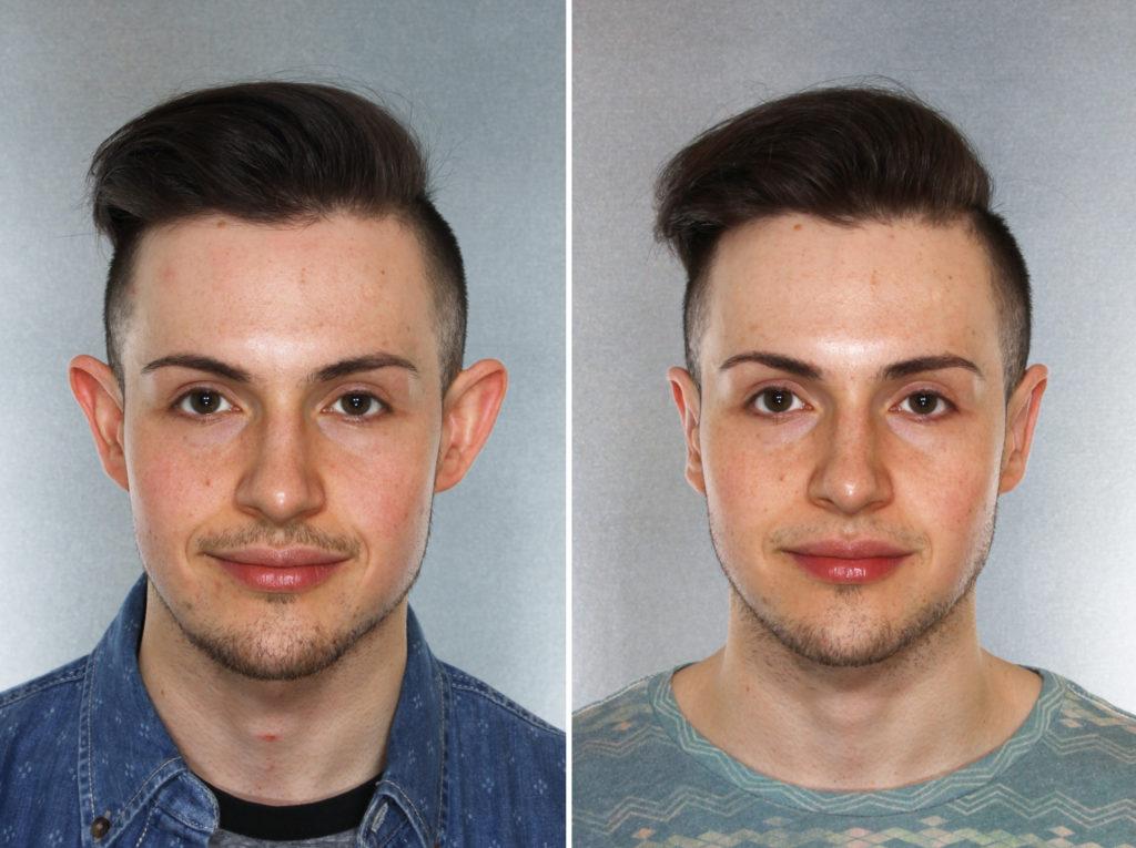 Фото до и после лазерной отопластики №4