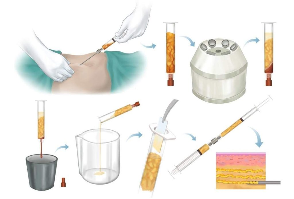 Этапы подготовки жира для трансплантации