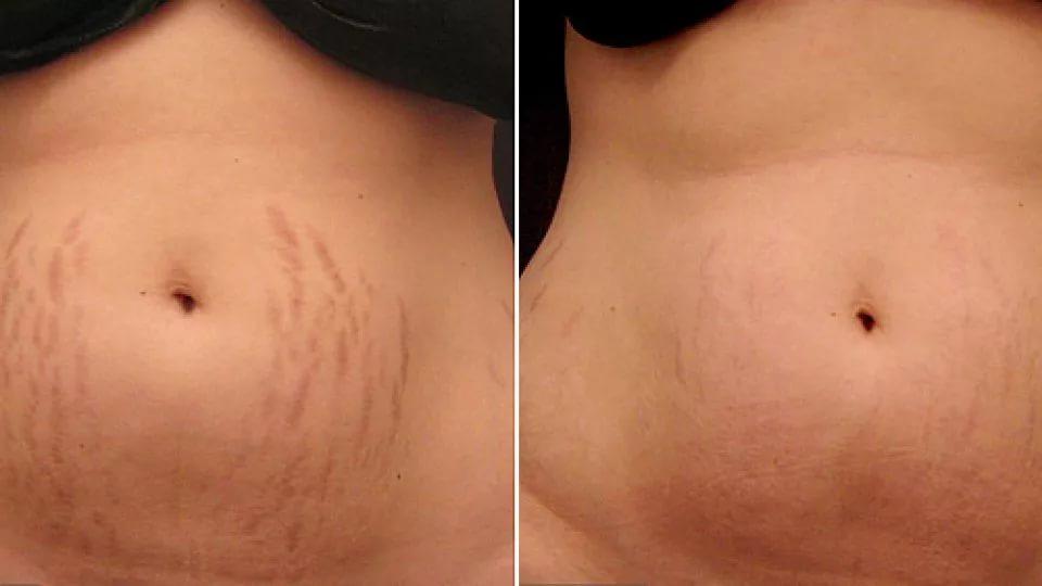 Фото до и после лазерной шлифовки