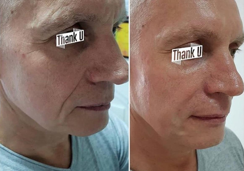 Фото до и после: коррекция носогубных складок