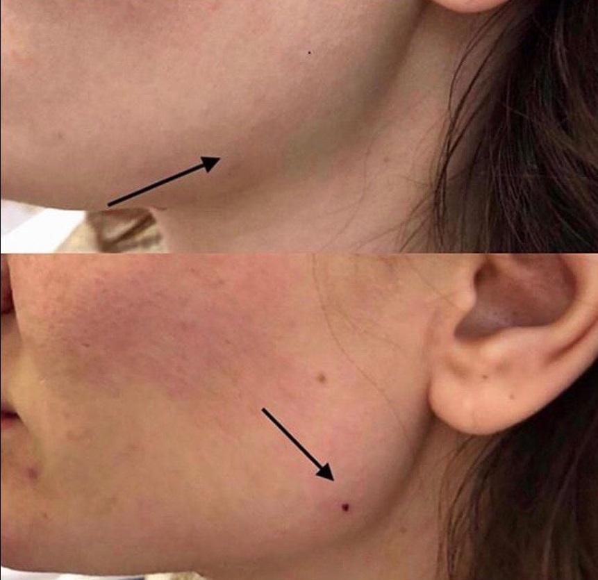Фото до и после: исправление контуров нижней челюсти препаратомNeuramis Volume