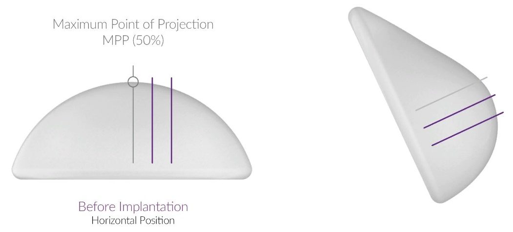 Благодаря новейшим технологиям импланты позволяют выглядеть бюсту более естественно