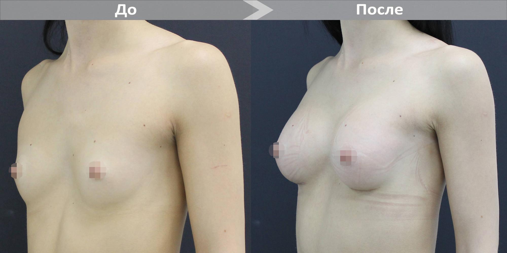 Фото до и после увеличения груди имплантами Motiva №1