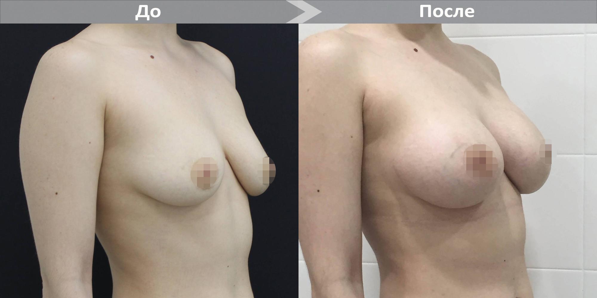 Фото до и после увеличения груди имплантами Motiva №2