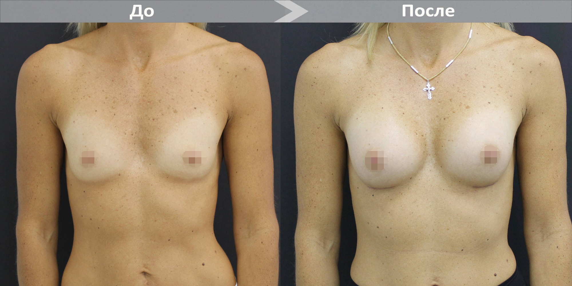 Фото до и после увеличения груди имплантами Motiva №3