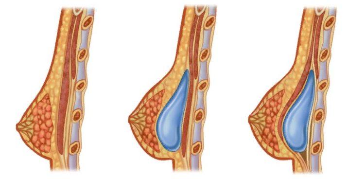 Имплант может располагаться под железой или мышцей