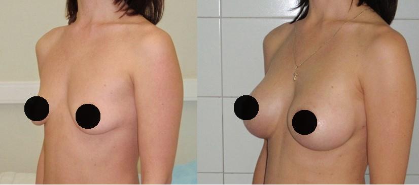 Фото до и после увеличения груди имплантами Евросиликон №1