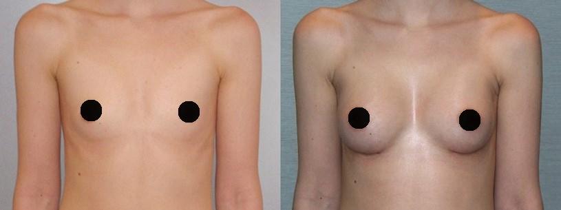 Фото до и после увеличения груди имплантами Евросиликон №2