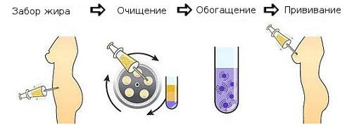 Этапы проведения липофилинга