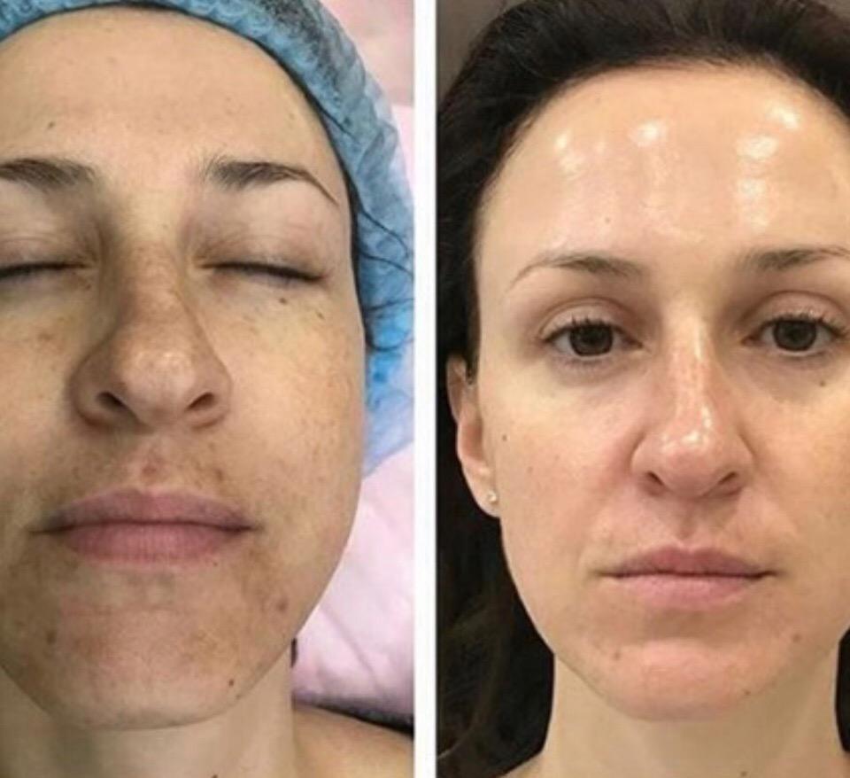 Очищение лица от пигментных пятен — 2 курса по 6 процедур