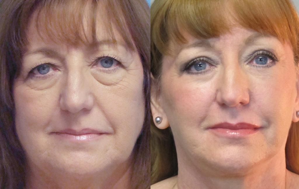 Фото до и после № 1 - лазерная блефаропластика