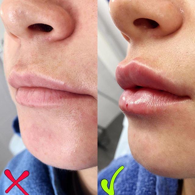 Фото до и после увеличения губ Repleri №1