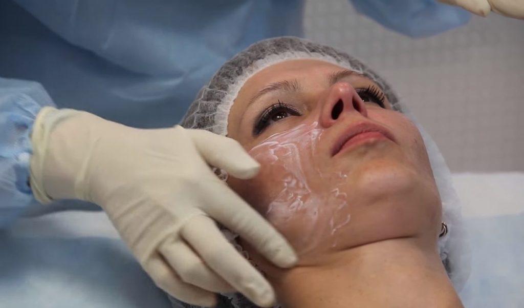 Нанесение анестетика