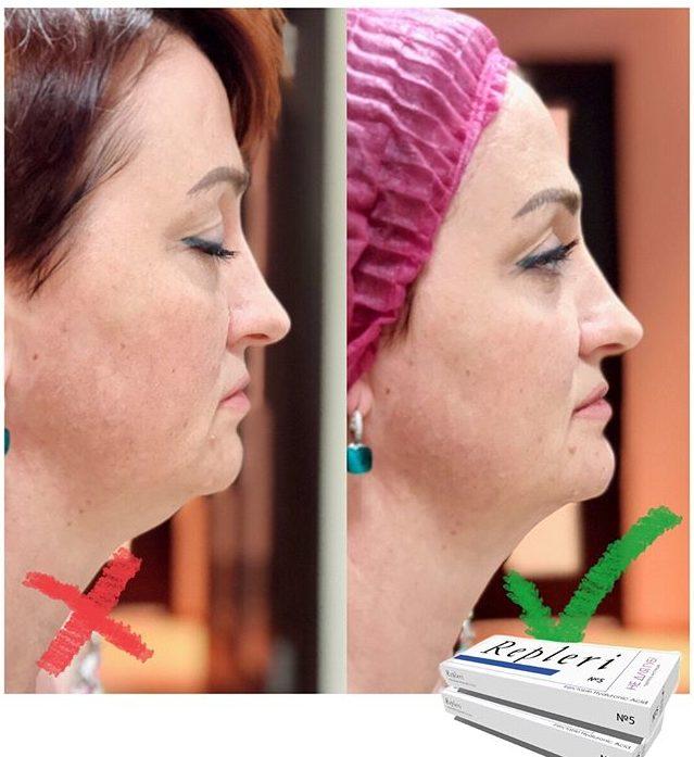 Фото до и после увеличения подбородка Repleri 5